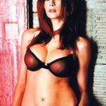Melania Trump plastic surgery rumors