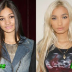 Pia Mia Before and After Cosmetic Surgery 150x150