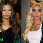 Pia Mia Before and After Surgery Procedure 150x150
