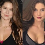 Amanda Cerny Before and After Cosmetic Surgery 150x150