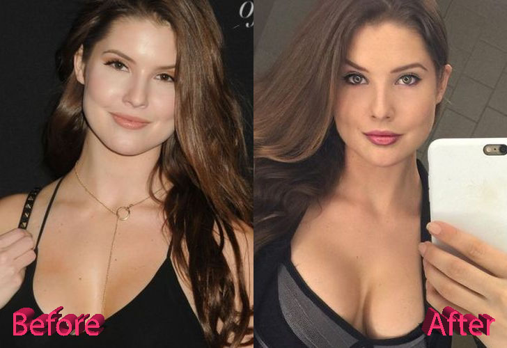 Amanda Cerny Before and After Cosmetic Surgery