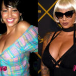 Amber Rose Before and After Cosmetic Surgery 150x150