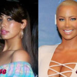 Amber Rose Before and After Surgery Procedure 150x150