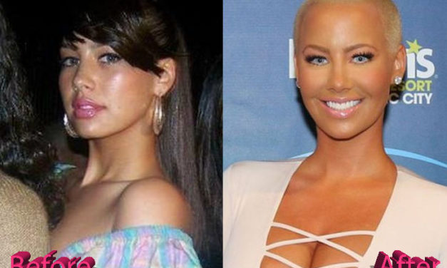 Amber Rose Plastic Surgery: A Lift Here and There