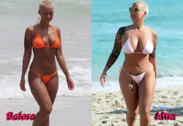 Amber Rose Plastic Surgery Before and After 630x433