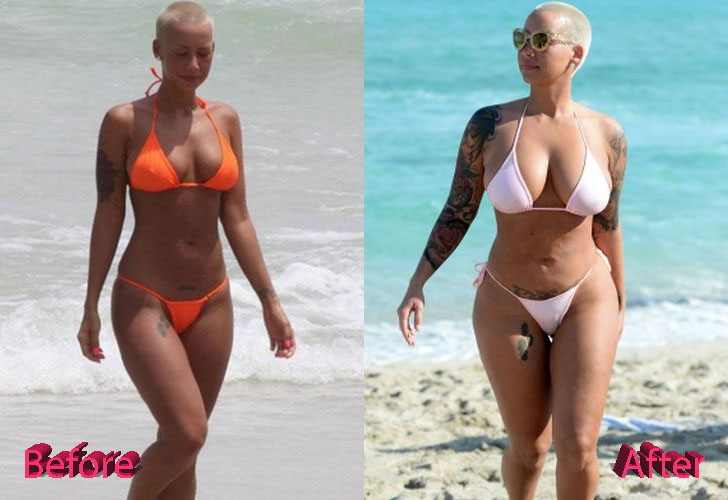 amber-rose-plastic-surgery-before-and-after