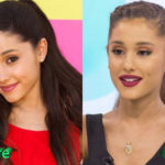 Ariana Grande Before and After Surgery Procedure
