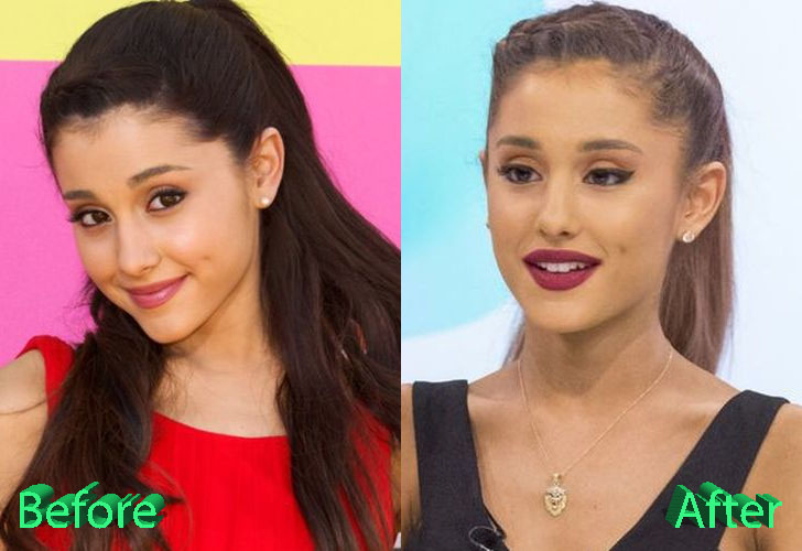 Ariana Grande Plastic Surgery: True or Just Rumours?