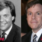 Bob Costas Before and After Cosmetic Surgery 150x150
