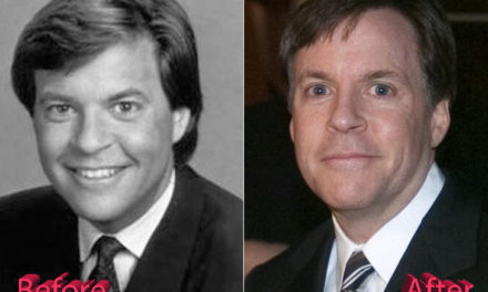 Bob Costas Before and After Plastic Surgery