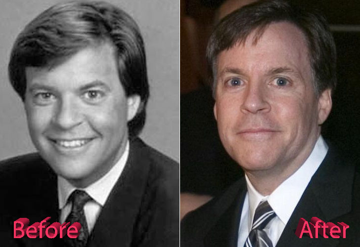 Bob Costas Before and After Cosmetic Surgery