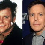 Bob Costas Before and After Surgery Procedure