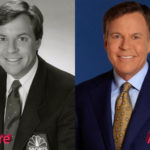 Bob Costas Plastic Surgery Before and After 150x150