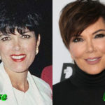 Kris Jenner Before and After Cosmetic Surgery 150x150