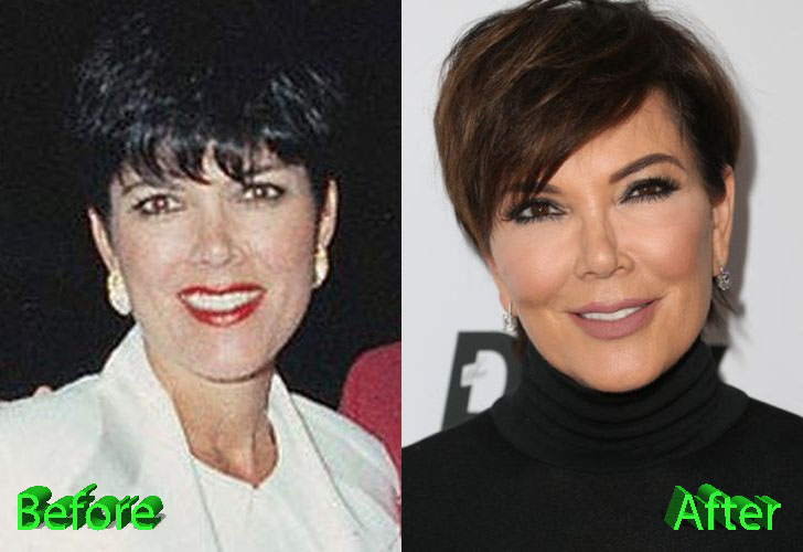 kris-jenner-before-and-after-cosmetic-surgery