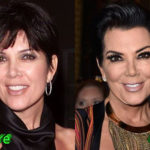 Kris Jenner Before and After Facelift Procedure 150x150