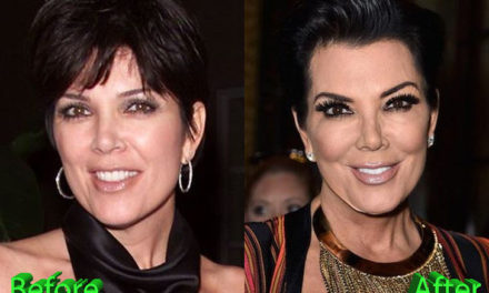Kris Jenner Plastic Surgery: A Really Beautiful Granny