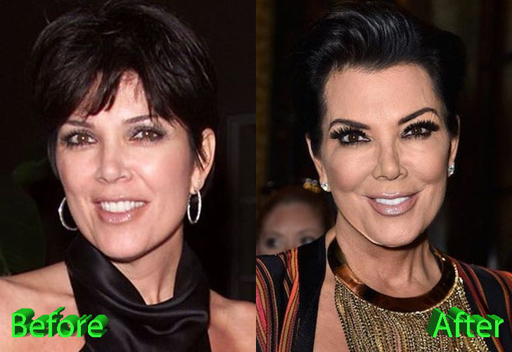 kris-jenner-before-and-after-facelift-procedure