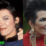 Kris Jenner Plastic Surgery Before and After 150x150