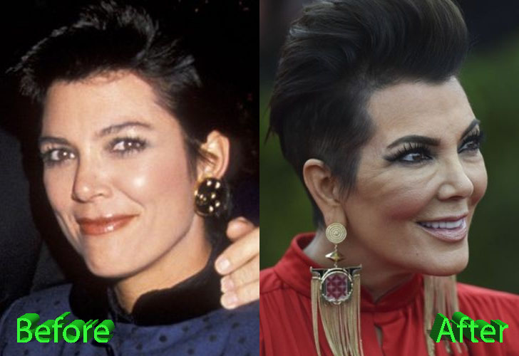 kris-jenner-plastic-surgery-before-and-after