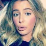 Brielle Biermann After Lip Job Surgery