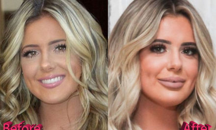 Brielle Biermann Plastic Surgery: A Way Too Soon