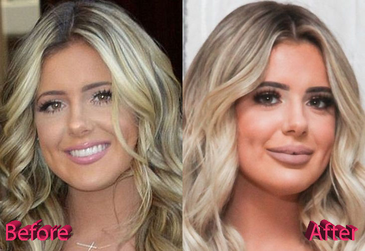 Brielle Biermann Before and After Cosmetic Surgery