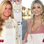 Brielle Biermann Before and After Surgery Procedure