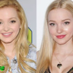 Dove Cameron Before and After Cosmetic Surgery 150x150