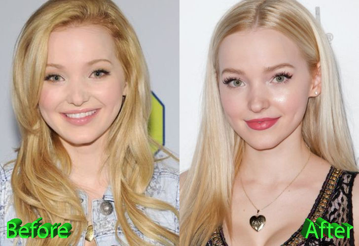 Dove Cameron Before and After Cosmetic Surgery