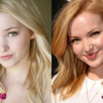 Dove Cameron Before and After Surgery Procedure 150x150