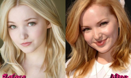 Dove Cameron Plastic Surgery: A Few Suspicious Changes