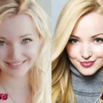 Dove Cameron Plastic Surgery Before and After 150x150