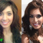 Farrah Abraham Before and After Surgery Transformation 150x150