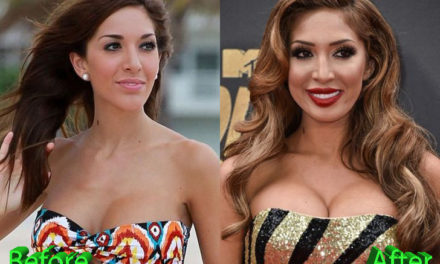 Farrah Abraham Plastic Surgery: Farrah's Many Changes