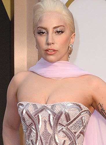 Lady Gaga After Plastic Surgery