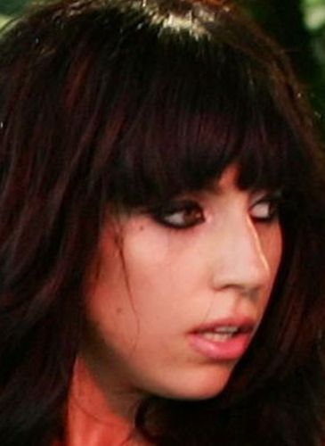 Lady Gaga Before Nose Job Surgery