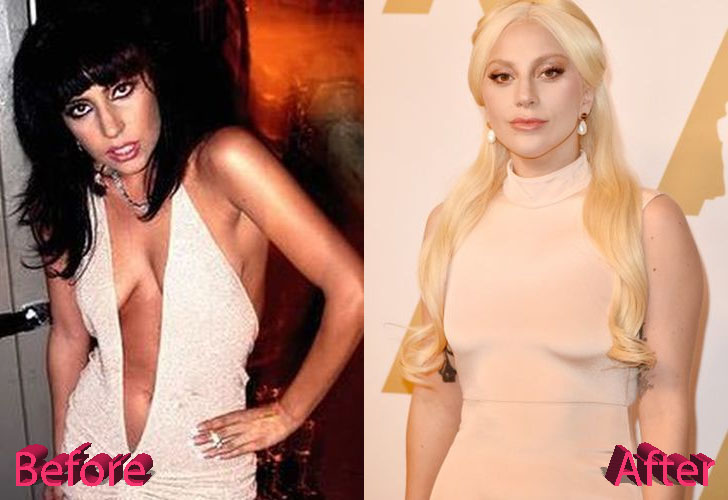 Lady Gaga Before and After Surgery Procedure