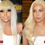 Lady Gaga Plastic Surgery Before and After 150x150