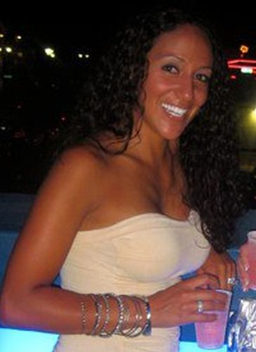 Melissa Gorga Before Plastic Surgery