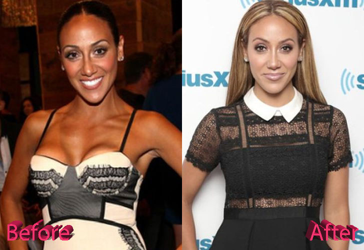 Melissa Gorga Before and After Cosmetic Surgery