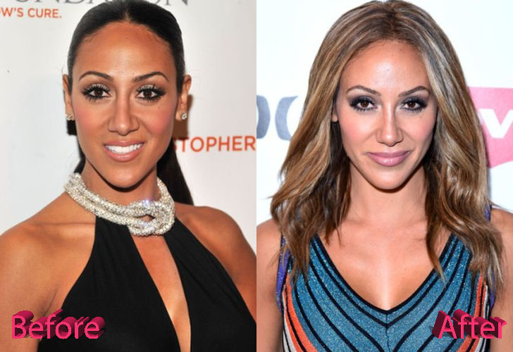 Melissa Gorga Before and After Surgery Procedure