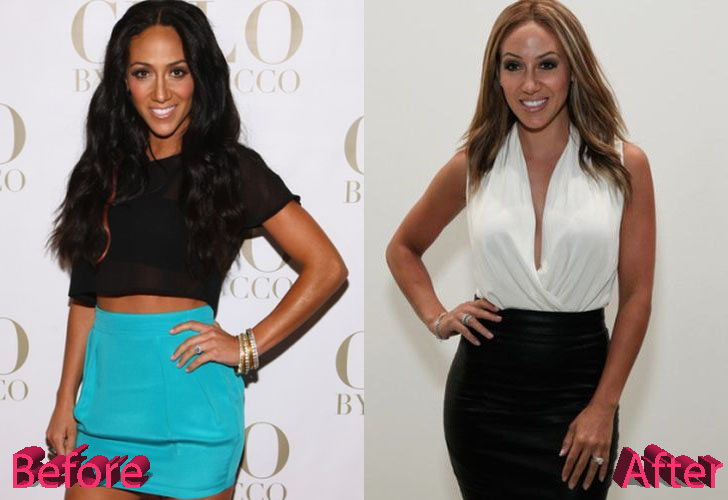 Melissa Gorga Plastic Surgery Before and After