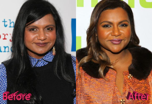 Mindy Kaling Before and After Cosmetic Surgery 630x433