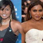 Mindy Kaling Before and After Surgery Procedure