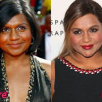 Mindy Kaling Plastic Surgery Before and After 150x150