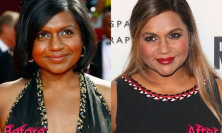 Mindy Kaling Plastic Surgery: A Project Done Well