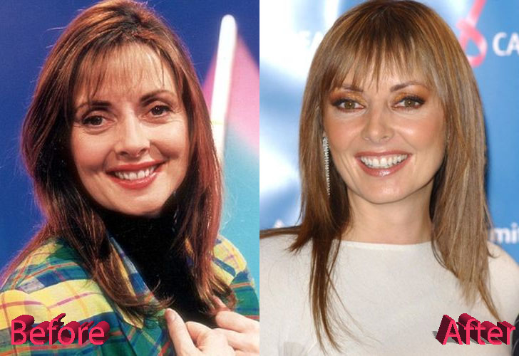Carol Vorderman Plastic Surgery: Still Looking Great