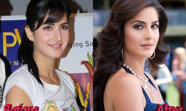 Katrina Kaif Plastic Surgery: New Look For Katrina