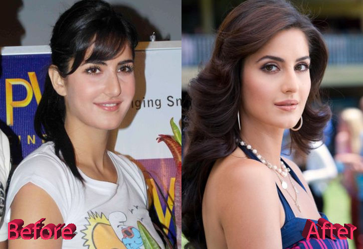 Katrina Kaif Before and After Cosmetic Surgery